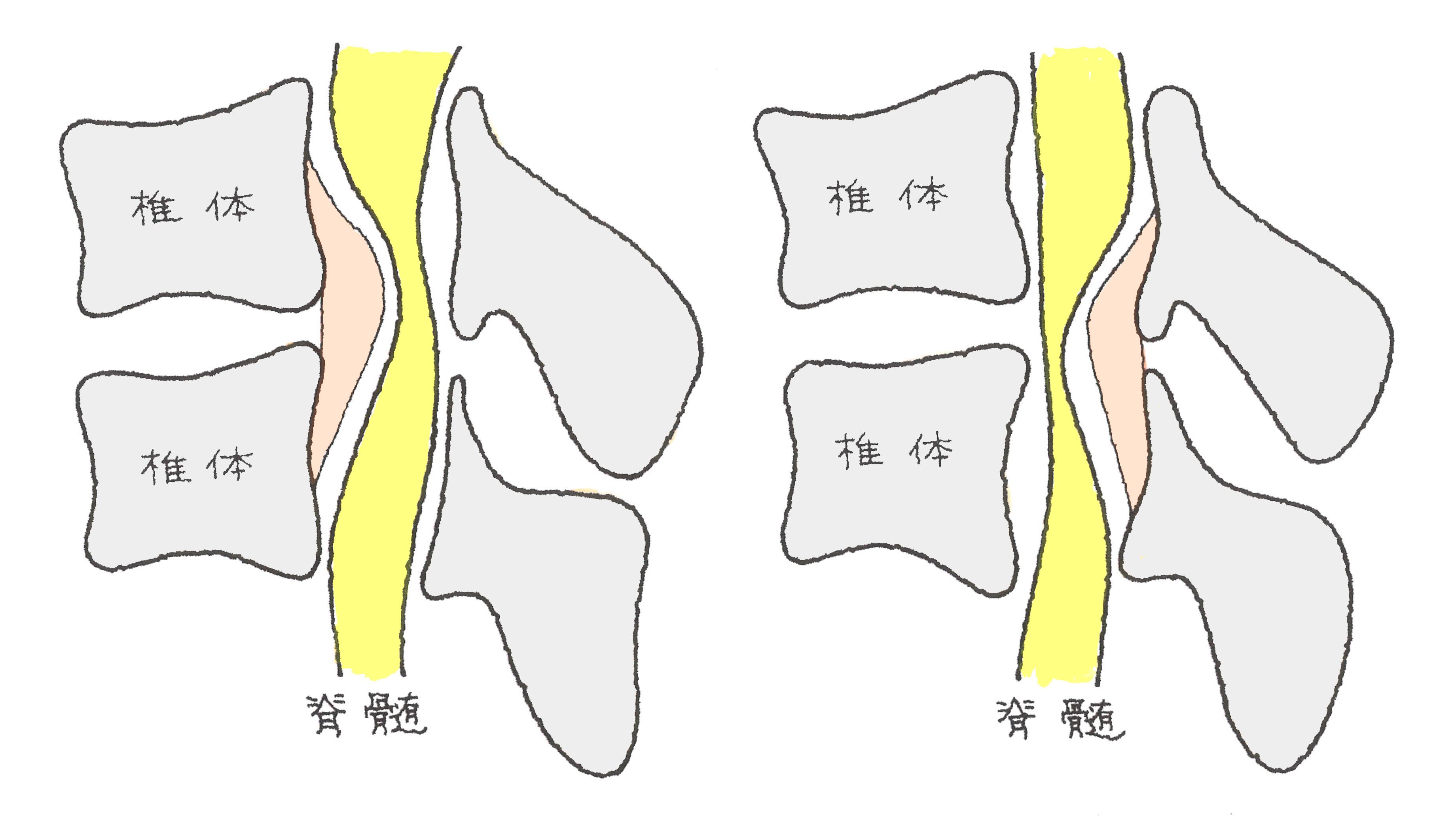 骨 化 症 十字 靭帯 後