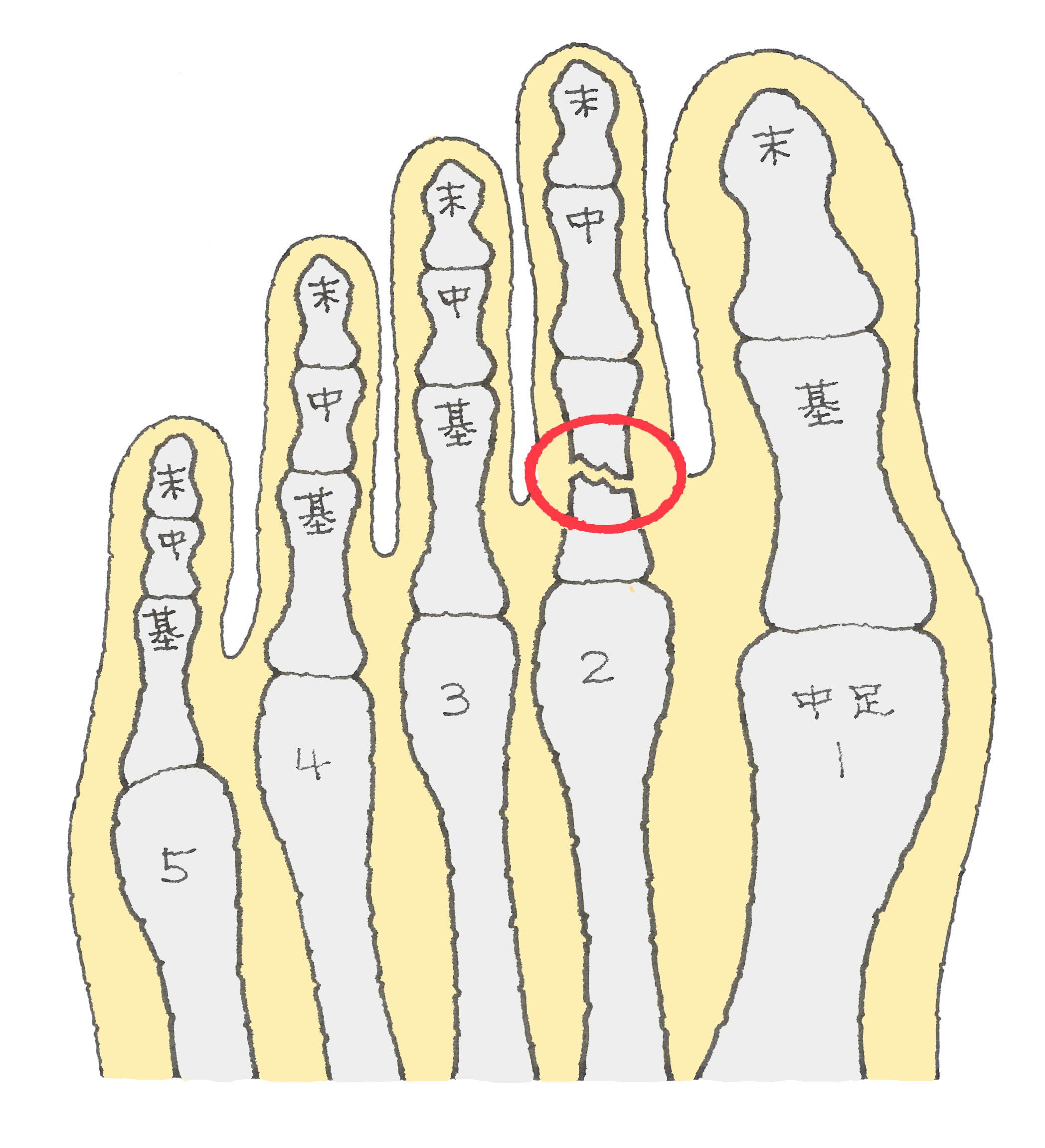 足 親指 骨折