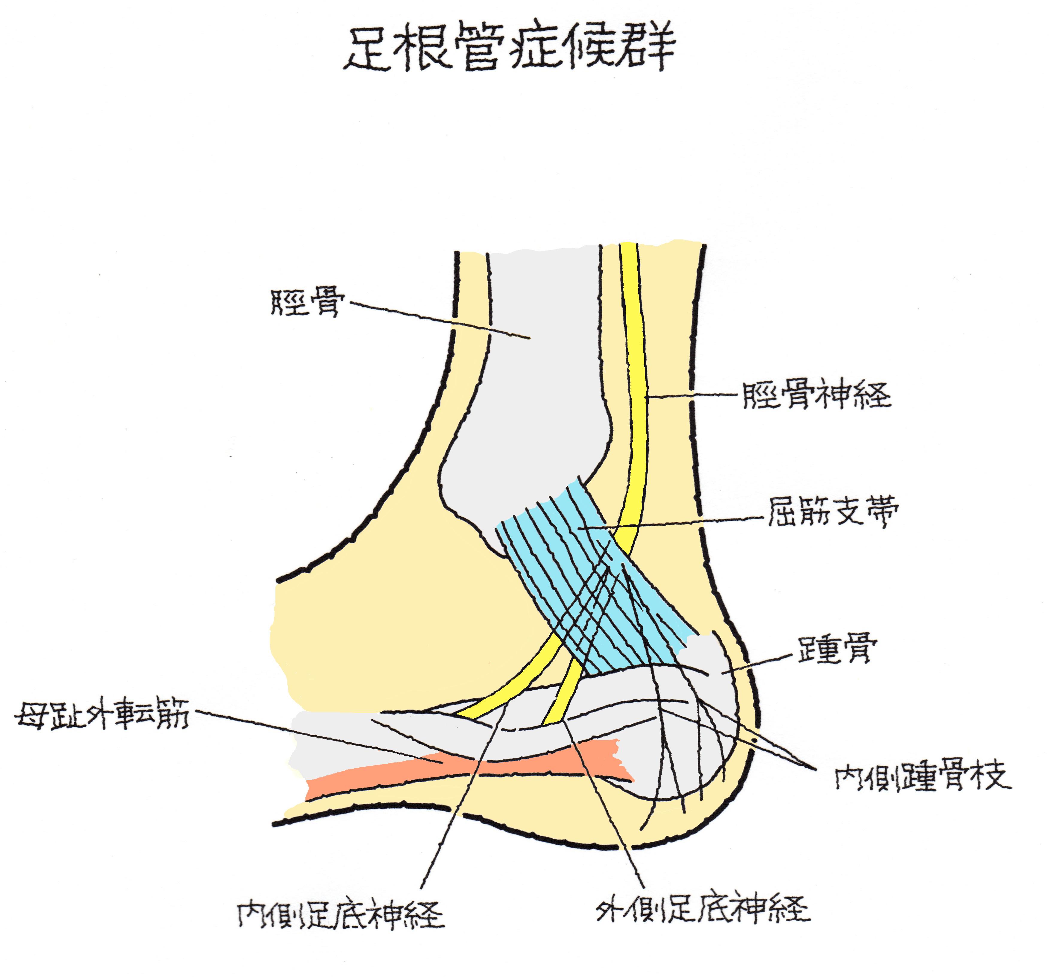 足根骨の骨折 足根管症候群(そっこんかんしょうこうぐん ...