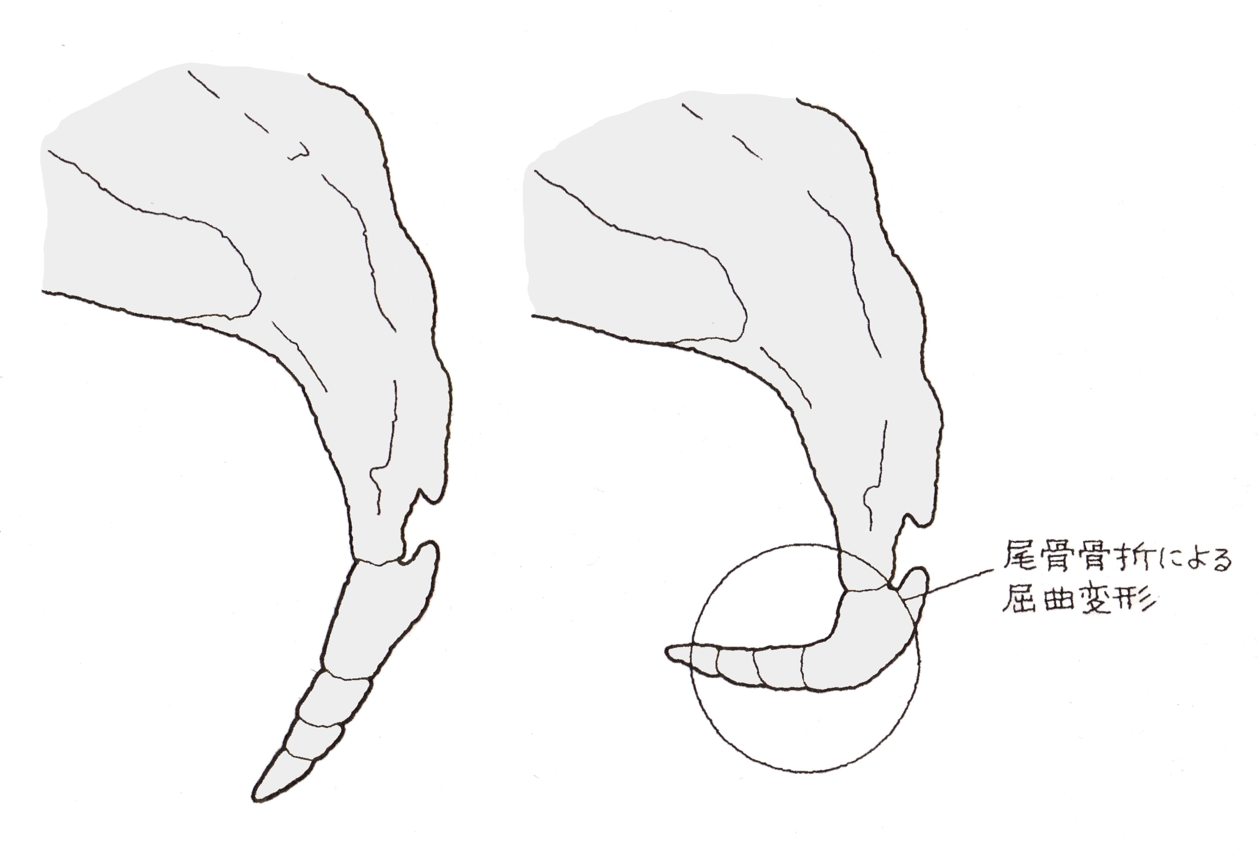 治療 仙骨 骨折