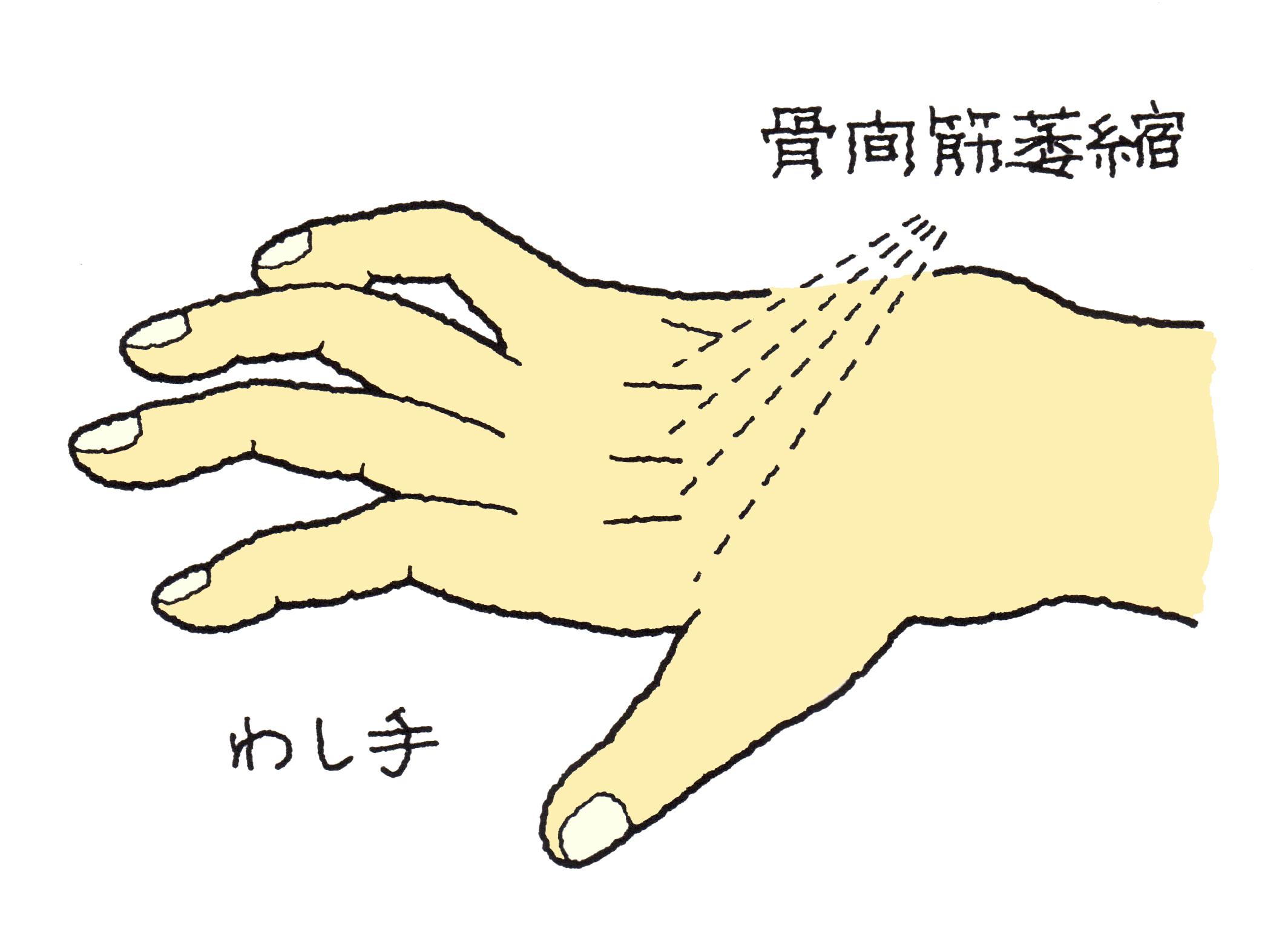 尺骨神経麻痺 (しゃくこつしん...