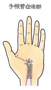 手 根 管 症候群 手根管症候群(しゅこんかんしょうこうぐん)とは?症状・原因・治療...